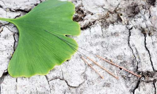 Bild: Detail Akkupunktur